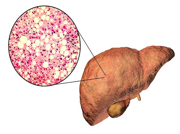 Remédios caseiros para gordurano fígado