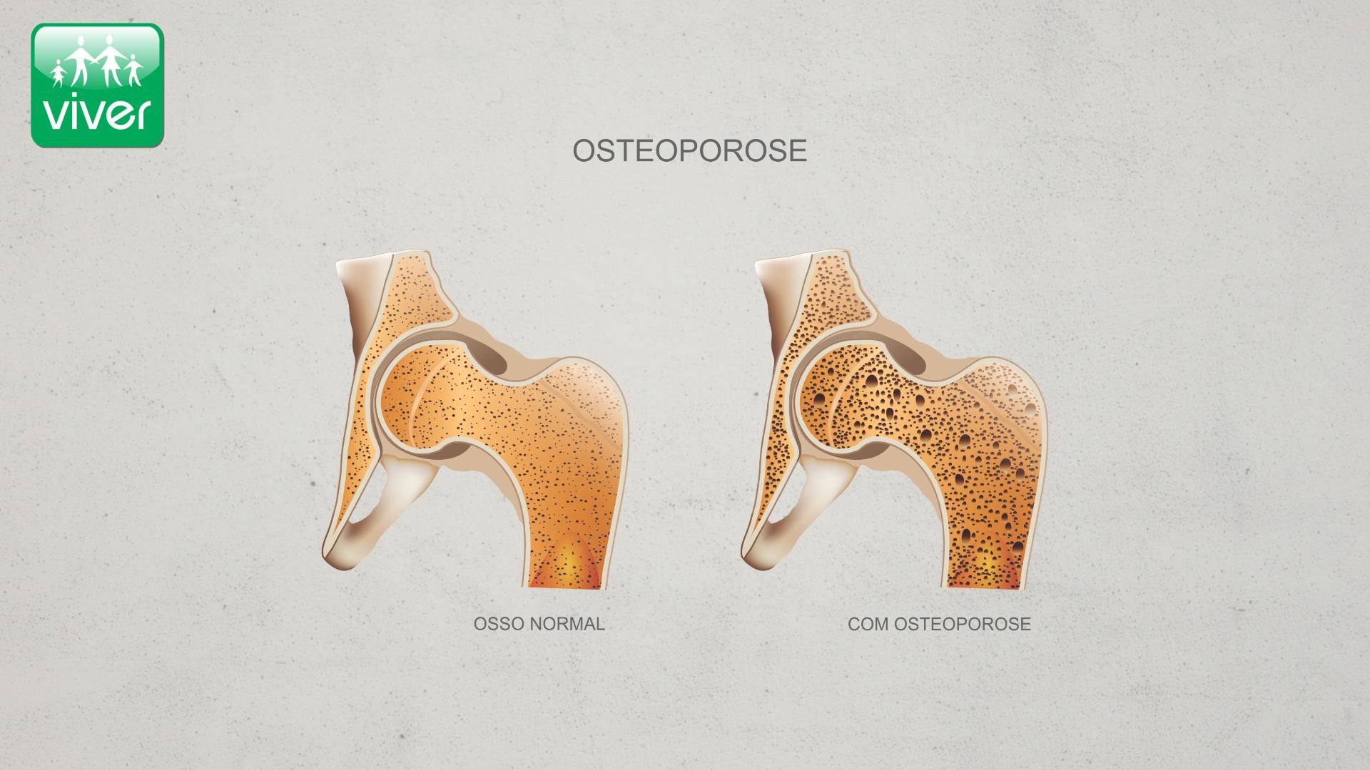 Osteoporose - Densidade Mineral Óssea (DMO) Diminuída