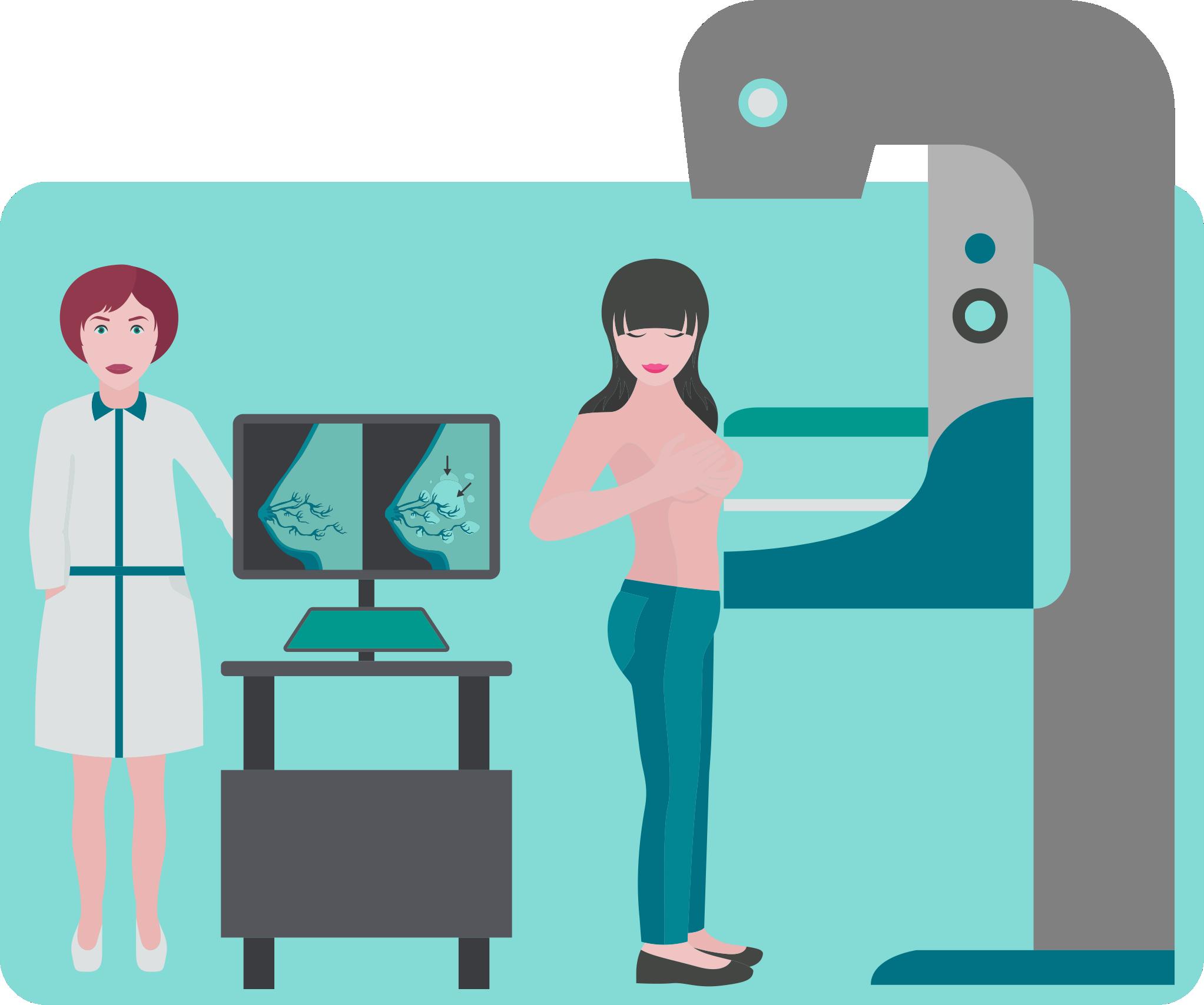 Câncer de Mama - Mamografia
