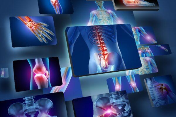 Como funciona o exame de densitometria óssea?