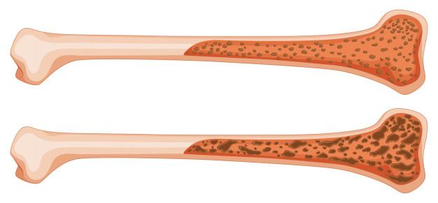 Osteoporose: o que é e quais são os sintomas