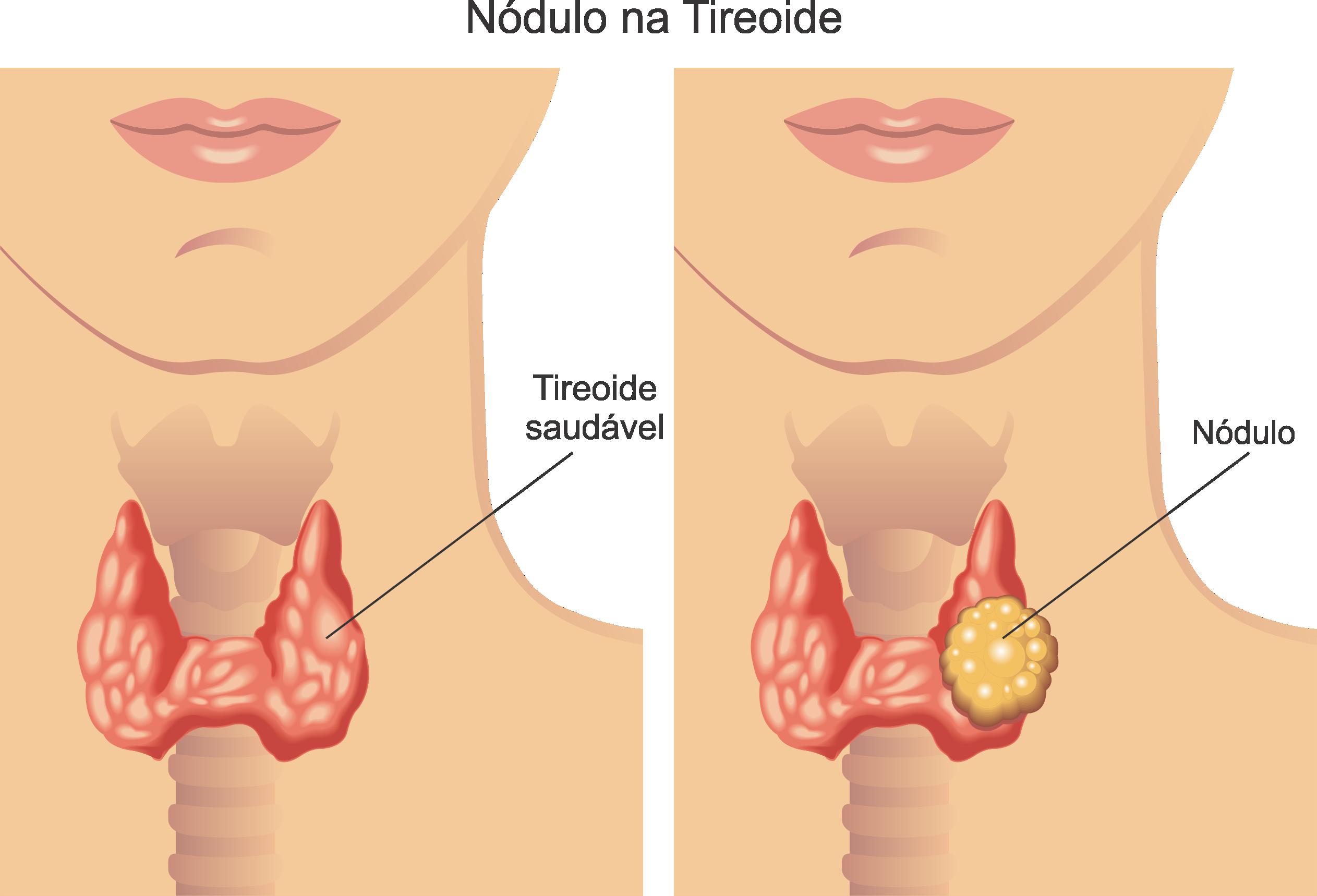 nodulo na tireoide