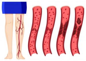 trombose-sintomas-diagnostico-tratamento