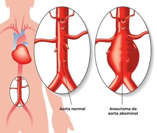 Aneurisma da aorta pode ser detectada pelo Ultrassom de abdômen total