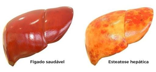 Esteatose hepática pode ser detectada pelo Ultrassom de abdômen total