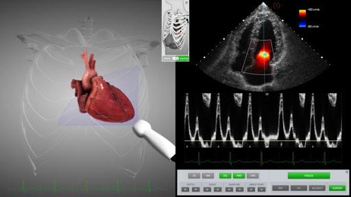Ecocardiograma com doppler: o que é, como é feito e para que serve